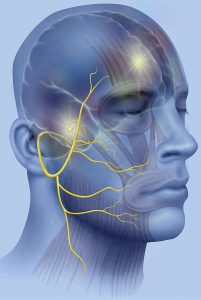 En la parálisis facial, la acupuntura tiene un 77% más de probabilidades de curación que el tratamiento farmacológico.