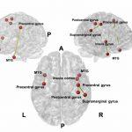 La acupuntura en el dolor de Pacientes con Parkinson