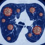 Guía Rápida para el diagnóstico y tratamiento COVID-19