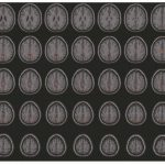 Acupuntura Craneal potencia la Conectividad funcional de las redes funcionales visual y cognitiva-motoras en pacientes con ictus isquémicoa agudo (Liu, H et al, 2020)