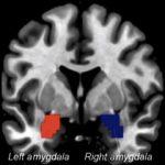 Los efectos inmediatos de la estimulación transcutánea continua auricular del nervio vago (taVNS) en puntos de acupuntura sobre la conectividad funcional de la amígdala en Migraña sin aura (MsA): un estudio preliminar (Luo, W et al 2020).